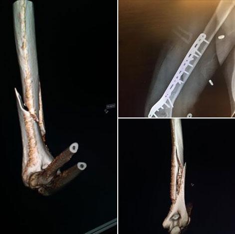 Вонн сломала руку впроцессе тренировки